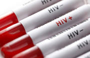 Nuovi anticorpi per sconfiggere l'Hiv