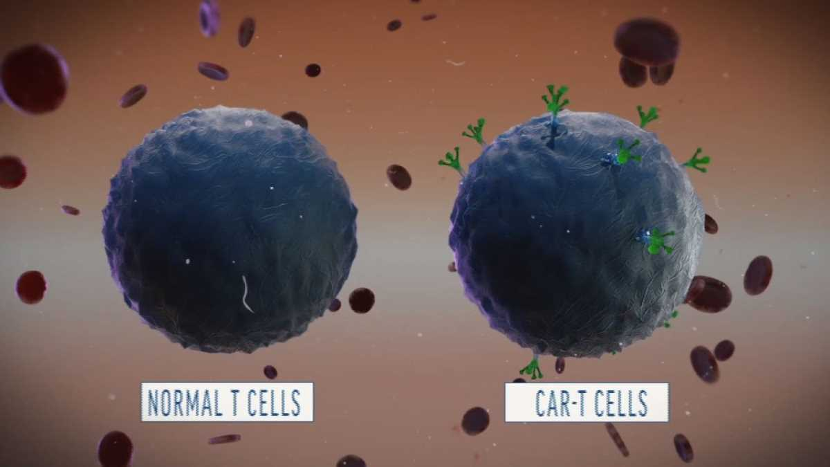 Terapia CAR-T cell per il mieloma multiplo